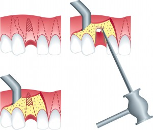 Root Canals Service